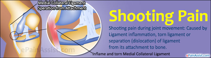 What is Shooting Pain