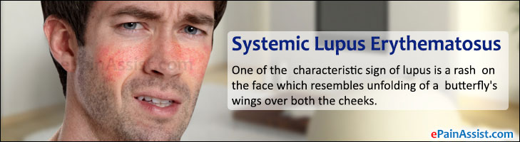 Systemic Lupus Erythematosus (SLE)
