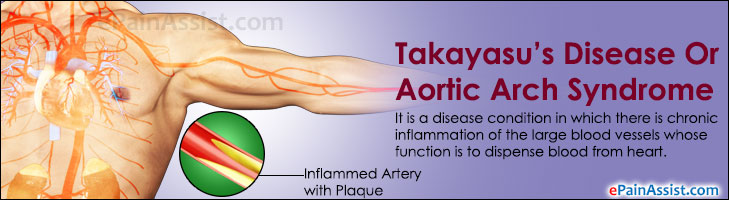 Takayasu's Disease Or Aortic Arch Syndrome