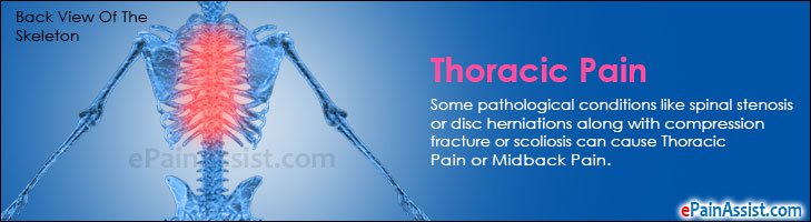 Thoracic Pain