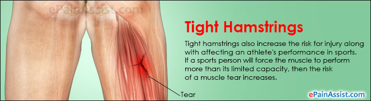 Tight Hamstrings|Stretches To Loosen Stiff Hamstring Muscles