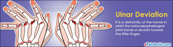 Ulnar Deviation or Ulnar Drift