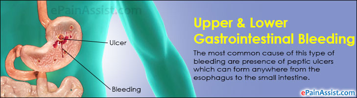 Upper & Lower Gastrointestinal Bleeding