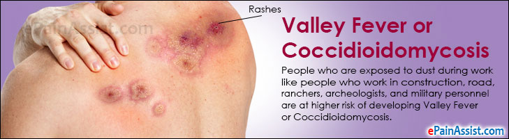 Valley Fever or Coccidioidomycosis