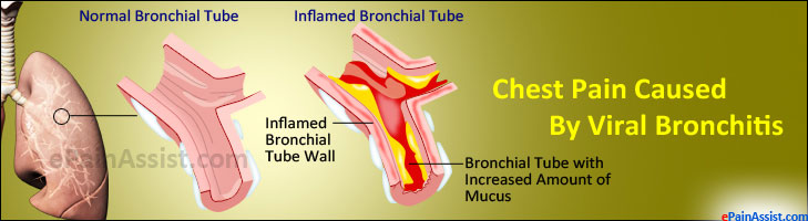 Chest Pain Caused By Viral Bronchitis