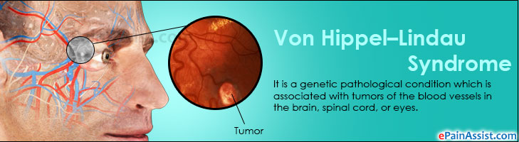 symptoms and treatment of the von hippel lindau syndrome vhl The national institute of neurological disorders and stroke (ninds) pursues a vigorous program of research aimed at preventing and treating disorders that cause.