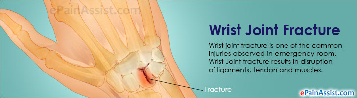 Wrist Joint Fracture