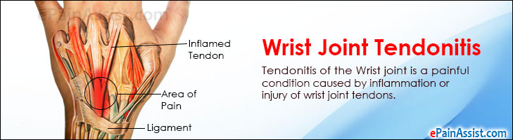 Wrist Joint Tendonitis|Causes|Symptoms|Treatment-Medications, PT ...