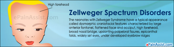 Zellweger Spectrum Disorders