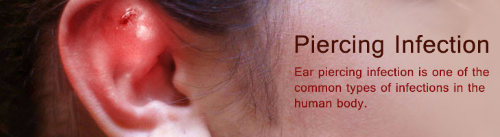 Ear piercing infection treatment home remedies uti