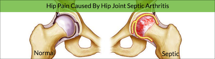 Hip Pain Caused By Hip Joint Septic Arthritis