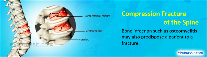 Compression Fracture of the Spine