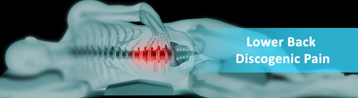Lower Back Discogenic Pain