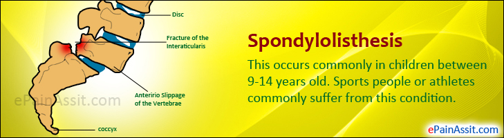 treatment for spondylothesis Initial treatment of symptomatic spondylolisthesis should include activity restriction and physical therapy the use of brace treatment is more controversial as.