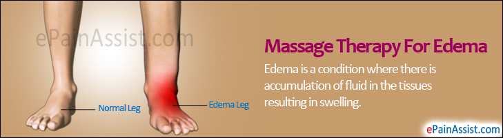 Massage Therapy For Edema