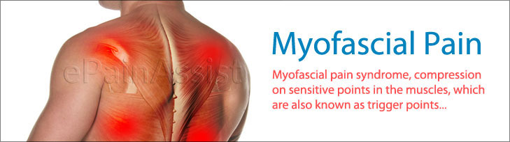 Investigations for Myofascial Pain