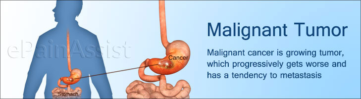 Malignant Tumor to Malignant Cancer; Know the Malignant Cancer Pain Types, Examples, Causes, Treatment