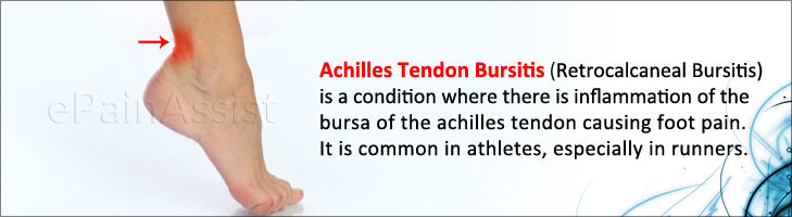 Retrocalcaneal Bursitis or Achilles Tendon Bursitis