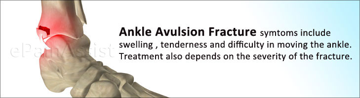 Ankle Avulsion Fracture: Symptoms, Causes, Treatment