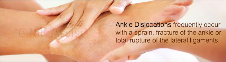 Dislocated Ankle or Ankle Dislocation