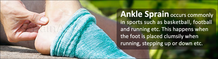 Sprained Ankle Or Twisted Ankle Causes Symptoms Treatment