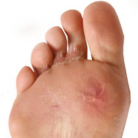 Athlete's Foot or Tinea Pedis