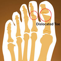 Dislocated Toe