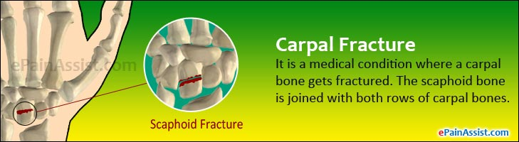 Carpal Fracture