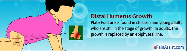 Distal Humerus Growth Plate Fracture
