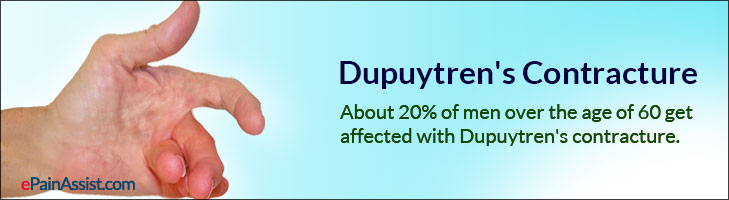 Dupuytren S Contracture Causes Symptoms Treatment