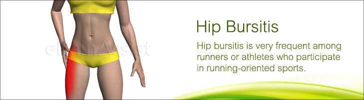 Hip Bursitis or Trochanteric Bursitis