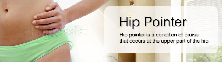 Hip Pointer or Iliac Crest Contusion