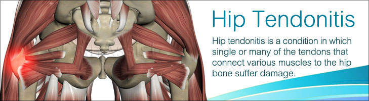 Hip Tendonitiscausessymptomstreatmentexerciseprevention