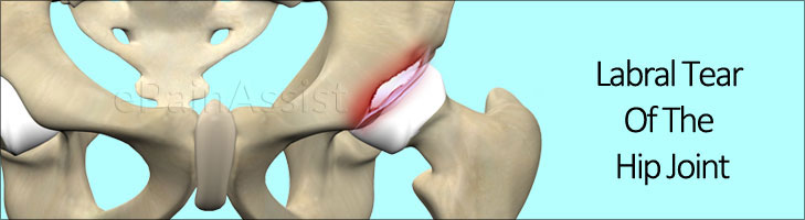 Labral Tear of the Hip Joint