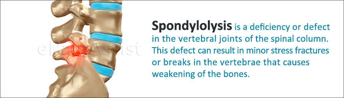 Spondylolysis Guide To Know Its Causes Symptoms And