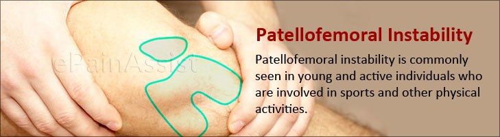 Patellofemoral Instability: Primary, Secondary, Causes, Symptoms, Treatment
