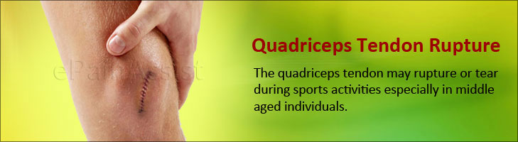 Quadriceps Tendon Rupture| Causes, Symptoms, Treatment, Surgical, Quadriceps Muscle