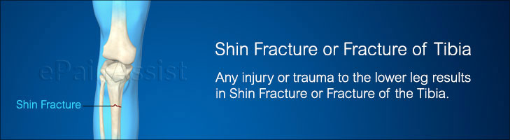 What is Shin Fracture or Fracture of Tibia?