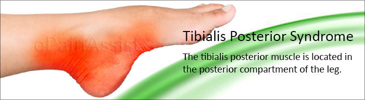 Tibialis Posterior Syndrome or PTTD
