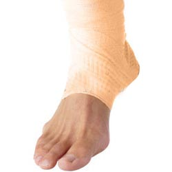 Ankle Injuries Dislocation Impingement Sprain Fracture
