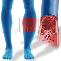 Deep Vein Thrombosis (DVT)