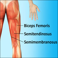 Pulled Hamstring Muscles