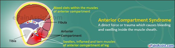 Anterior Compartment Syndrome