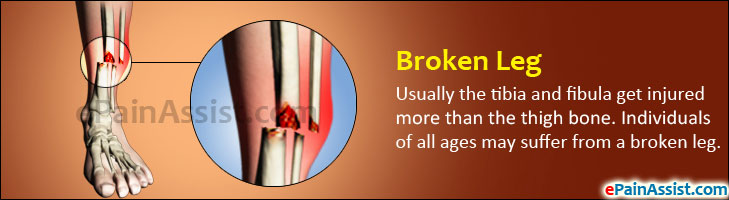 Broken Leg or Fractured Leg: Know the Causes, Symptoms, Classification, Treatment, Prevention