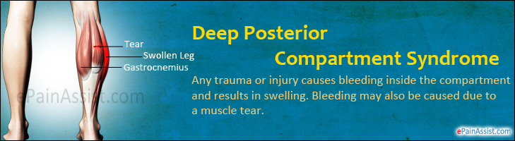 Deep Posterior Compartment Syndrome Symptoms Causes