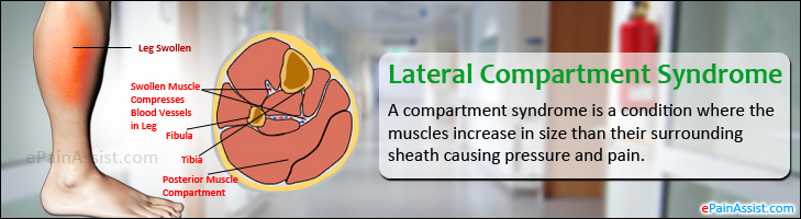 Lateral Compartment Syndrome