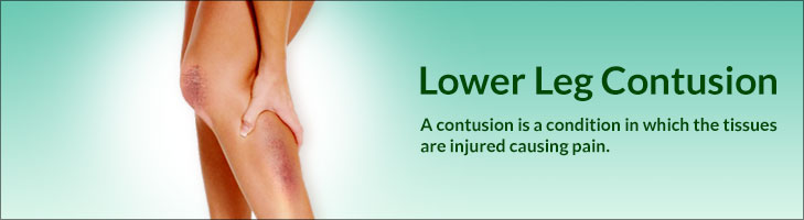 Lower Leg Contusion Symptoms Treatment Stretching