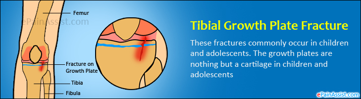 Tibial Growth Plate Fracture