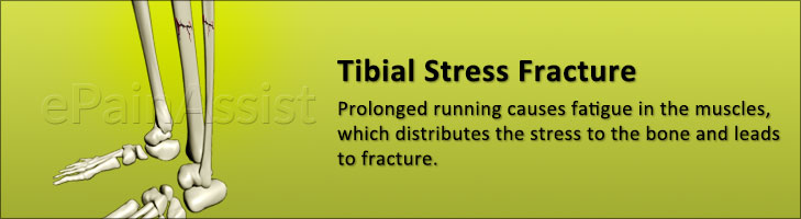 Tibial Stress Fracture: Symptoms, Causes, Diagnosis, Treatment