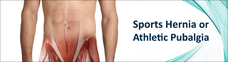 Sports Hernia or Athletic Pubalgia